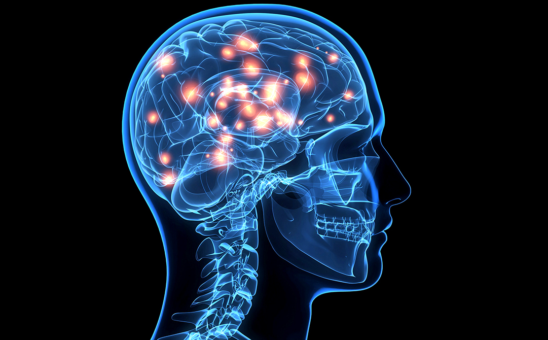 Neurological Problems Treatment